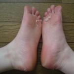 Baby Footのその後