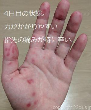 4日目の状態。力がかかりやすい指先の痛みが特に辛い。